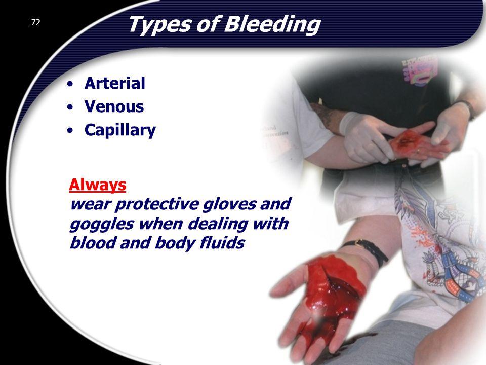 Types of Bleeding Arterial Venous Capillary Always