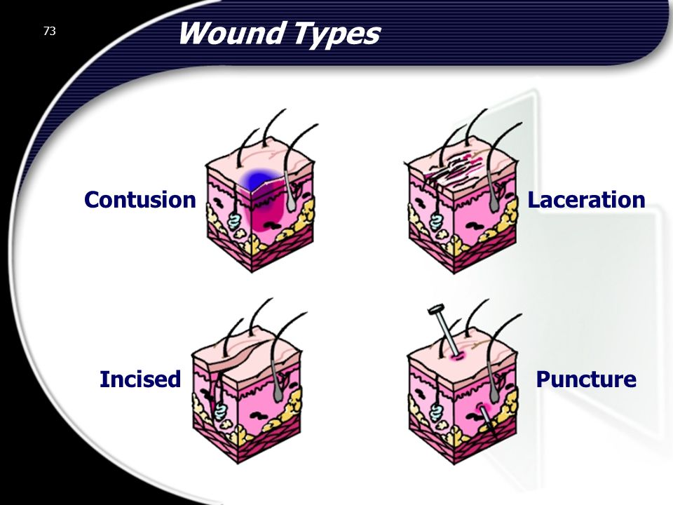 Wound Types Contusion Laceration Incised Puncture 73