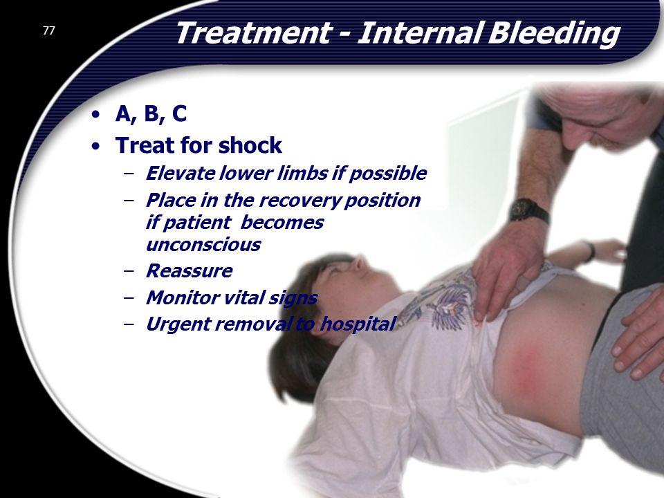 Treatment - Internal Bleeding