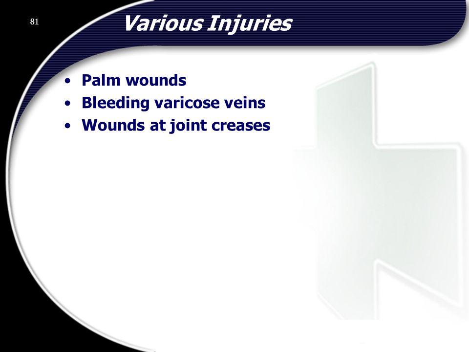 Various Injuries Palm wounds Bleeding varicose veins