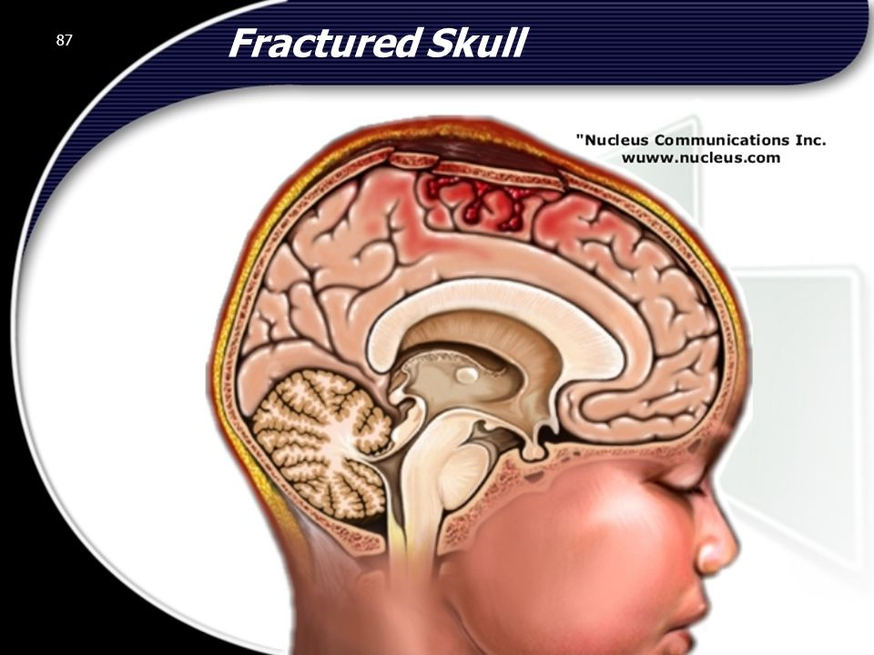 Fractured Skull 87 © 2002 Abertay Nationwide Training