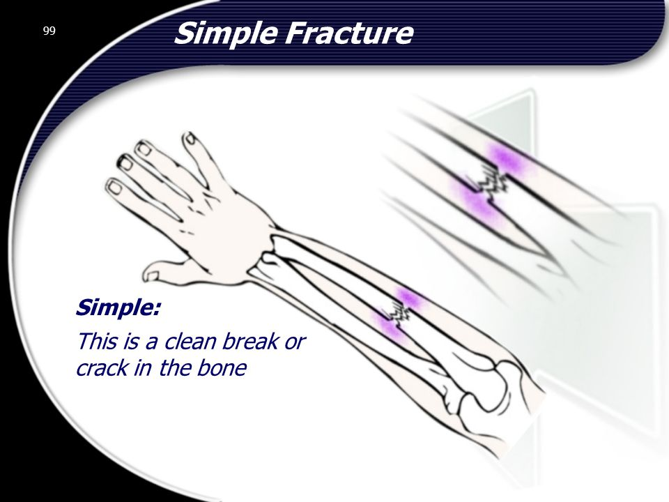 Simple Fracture Simple: This is a clean break or crack in the bone 99