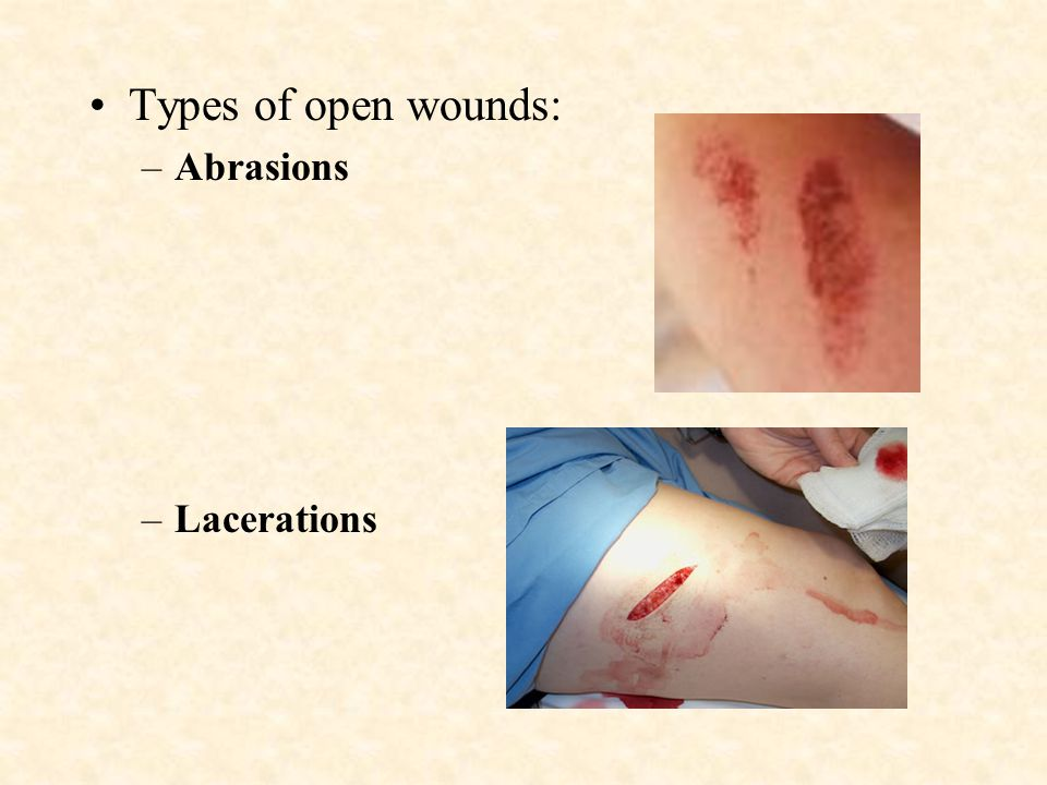 Types of open wounds: Abrasions Lacerations