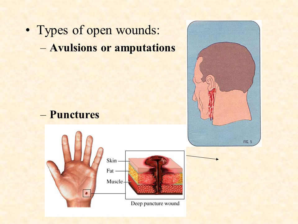 Types of open wounds: Avulsions or amputations Punctures