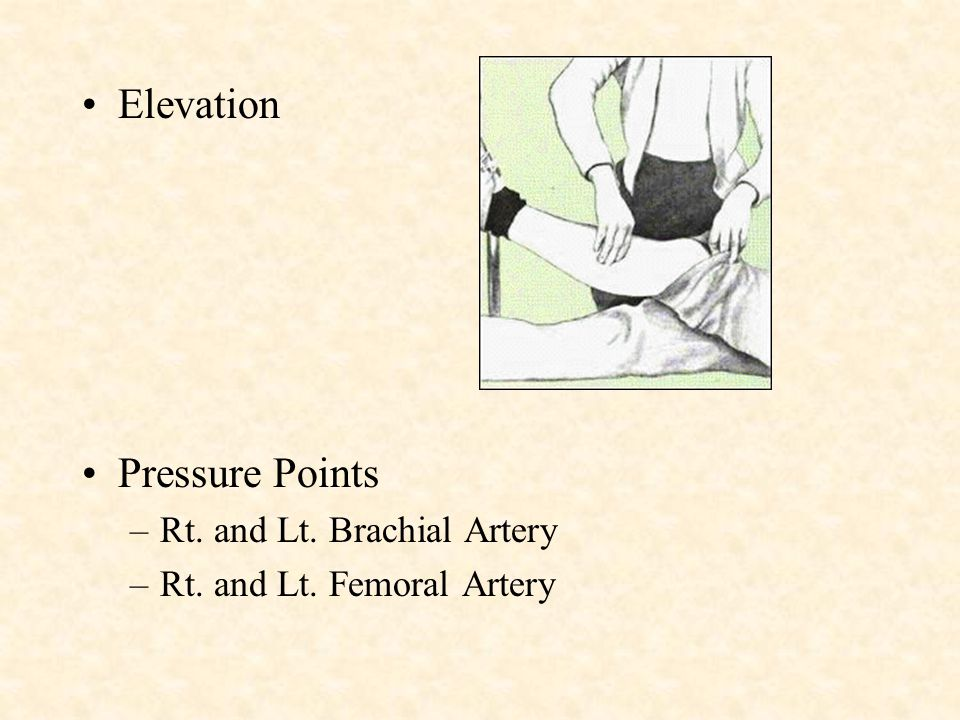 Elevation Pressure Points Rt. and Lt. Brachial Artery