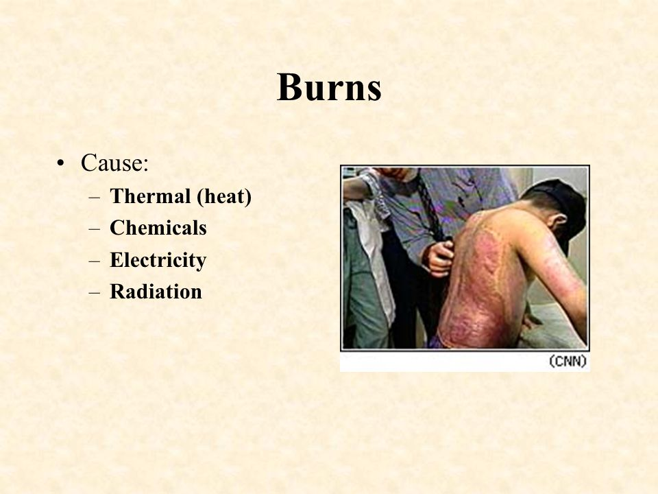 Burns Cause: Thermal (heat) Chemicals Electricity Radiation