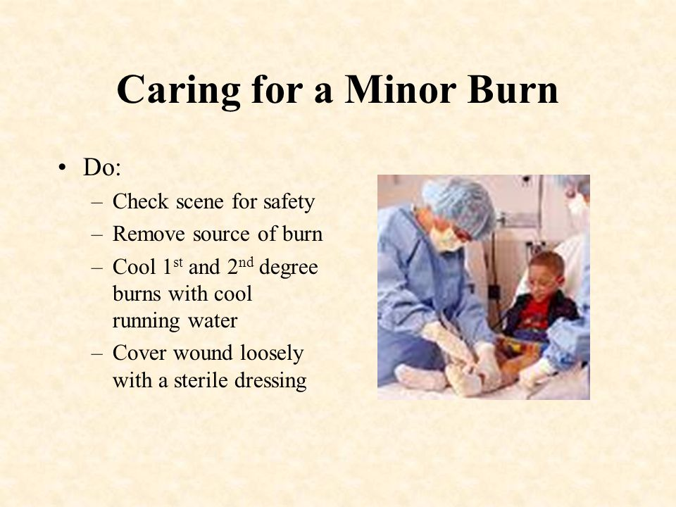 Caring for a Minor Burn Do: Check scene for safety