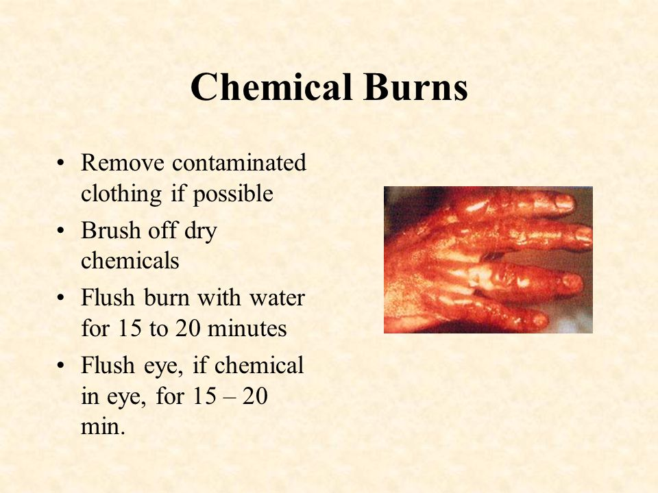 Chemical Burns Remove contaminated clothing if possible