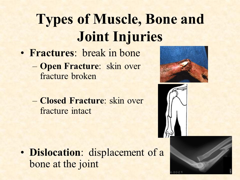 Types of Muscle, Bone and Joint Injuries