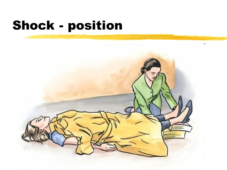 Shock - position