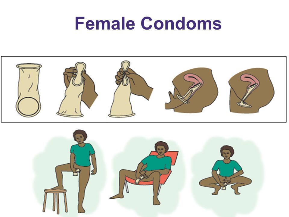 Female Condoms EXPLAIN steps in using female condoms:
