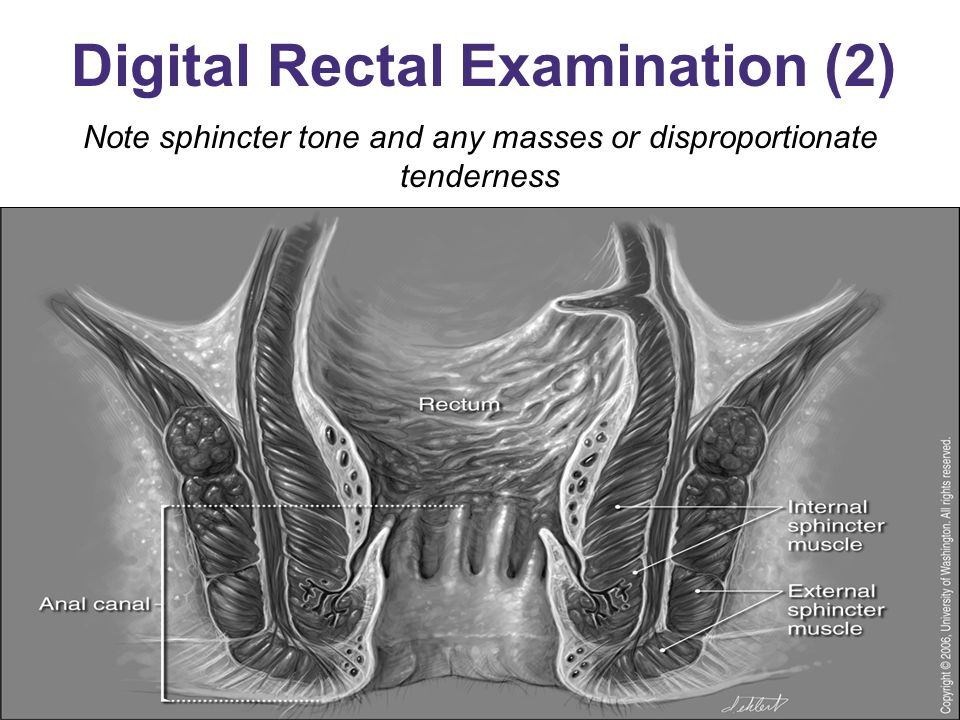Digital Rectal Examination (2)