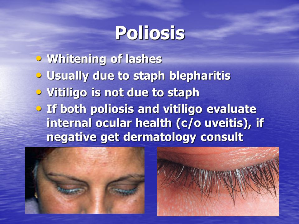 Poliosis Whitening of lashes Usually due to staph blepharitis
