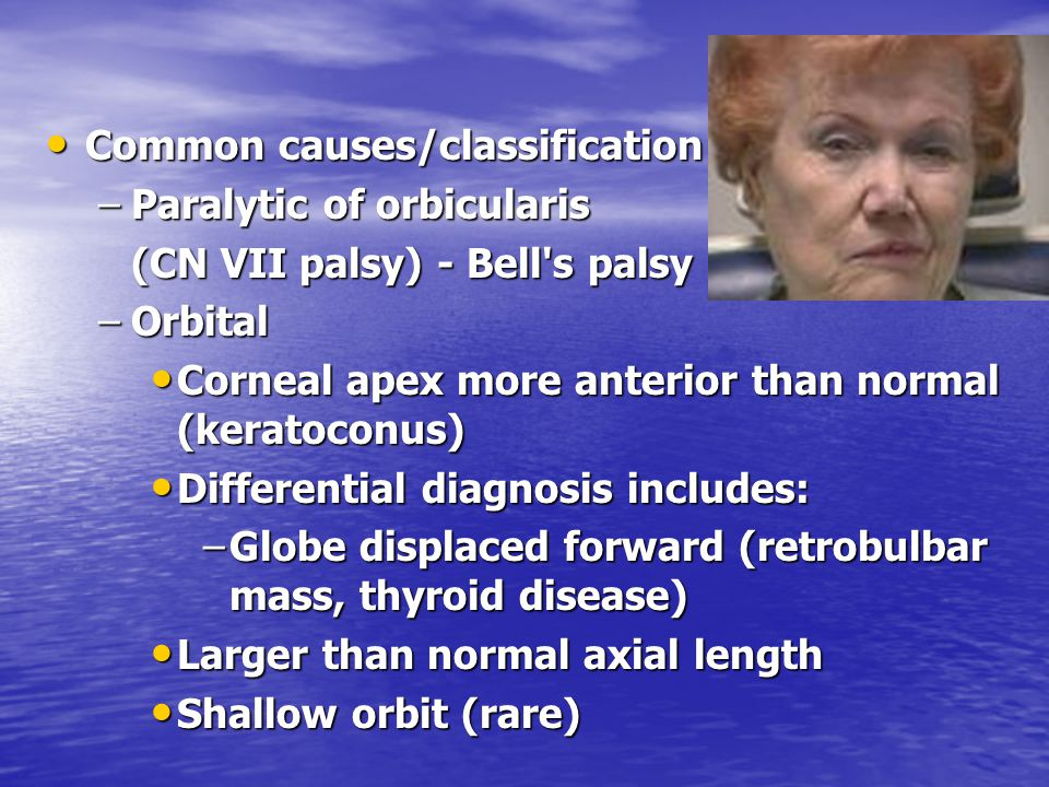 Common causes/classification