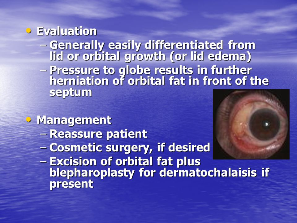 Evaluation Generally easily differentiated from lid or orbital growth (or lid edema)