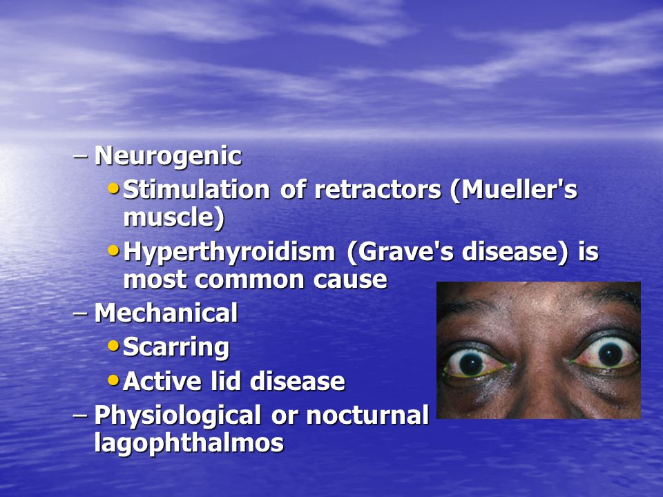 Neurogenic Stimulation of retractors (Mueller s muscle) Hyperthyroidism (Grave s disease) is most common cause.