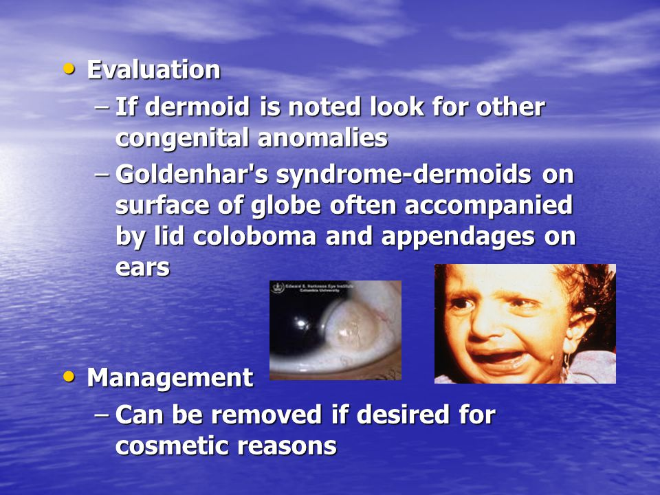 Evaluation If dermoid is noted look for other congenital anomalies.