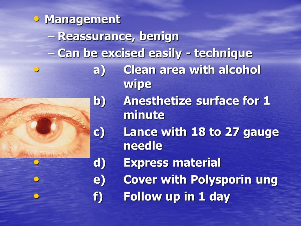 Management Reassurance, benign. Can be excised easily - technique. a) Clean area with alcohol wipe.
