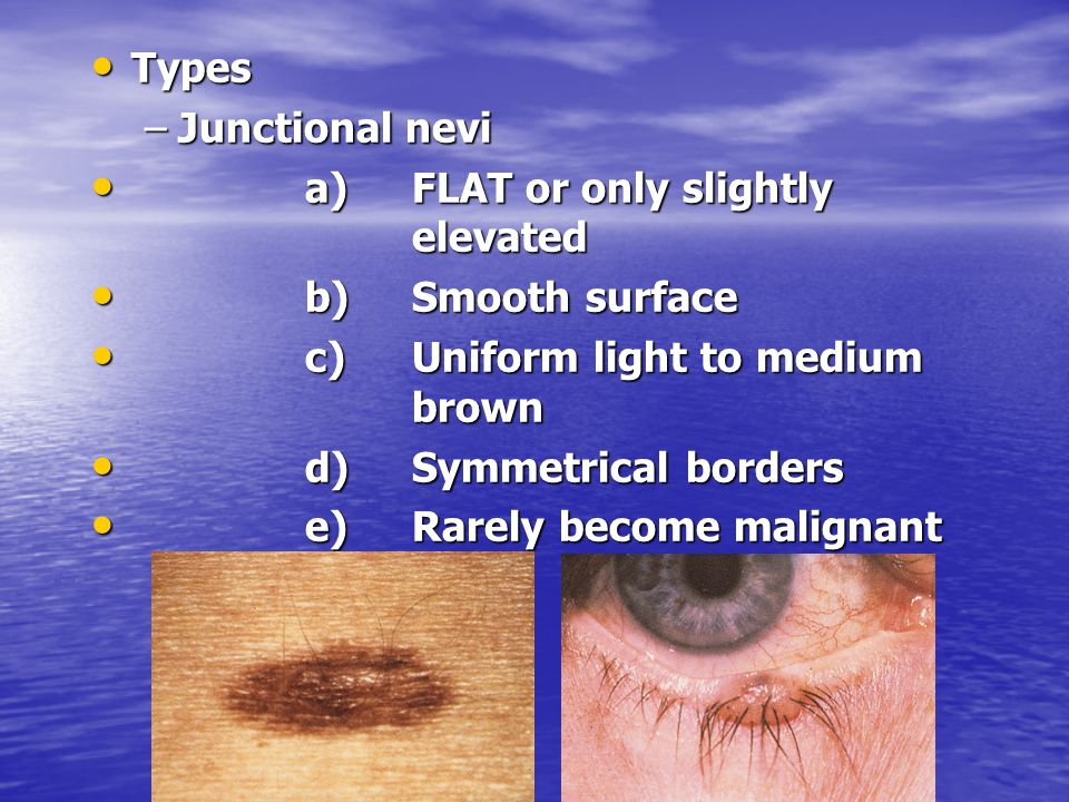 Types Junctional nevi. a) FLAT or only slightly elevated. b) Smooth surface. c) Uniform light to medium brown.