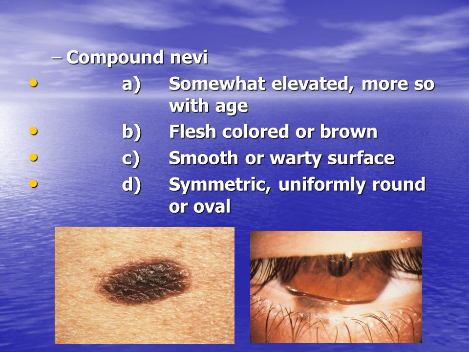 Compound nevi a) Somewhat elevated, more so with age. b) Flesh colored or brown. c) Smooth or warty surface.