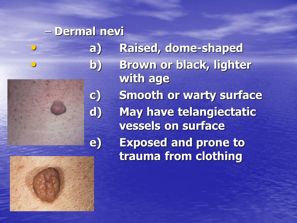 Dermal nevi a) Raised, dome-shaped. b) Brown or black, lighter with age. c) Smooth or warty surface.
