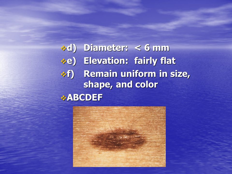 d) Diameter: < 6 mm e) Elevation: fairly flat. f) Remain uniform in size, shape, and color.