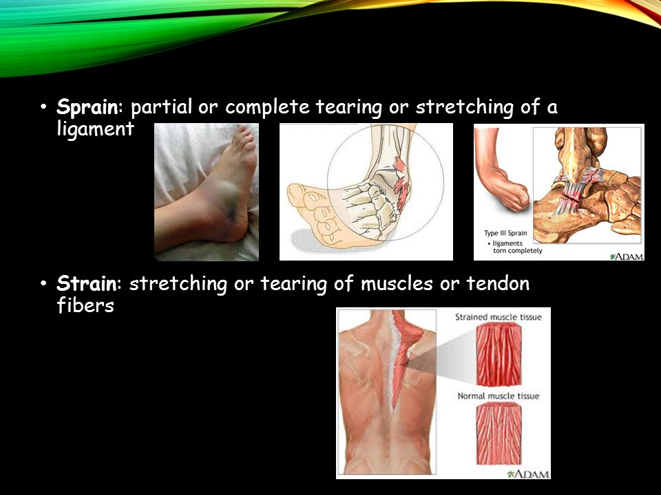 Sprain: partial or complete tearing or stretching of a ligament