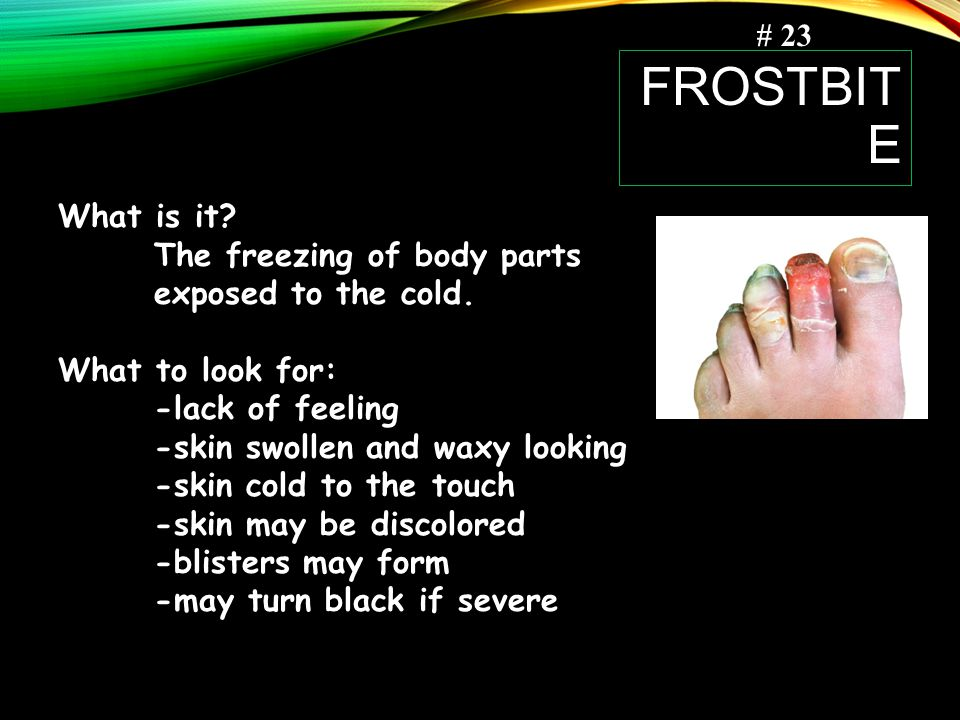 # 23 frostbite. What is it The freezing of body parts exposed to the cold. What to look for: -lack of feeling.