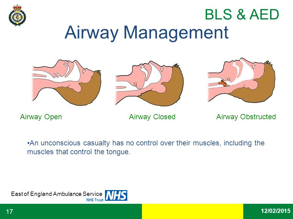 Airway Management Airway Open Airway Closed Airway Obstructed
