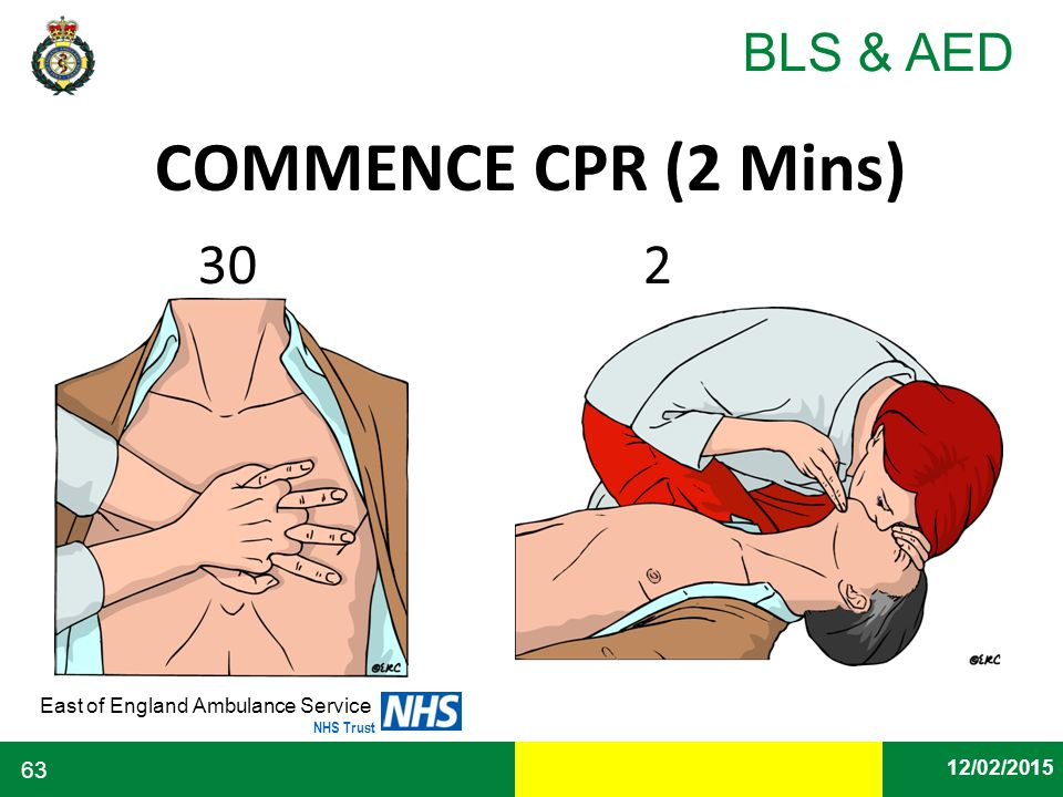 COMMENCE CPR (2 Mins) 30 2. 30 2. Interrupt CPR only when it is necessary to analyse the rhythm and.
