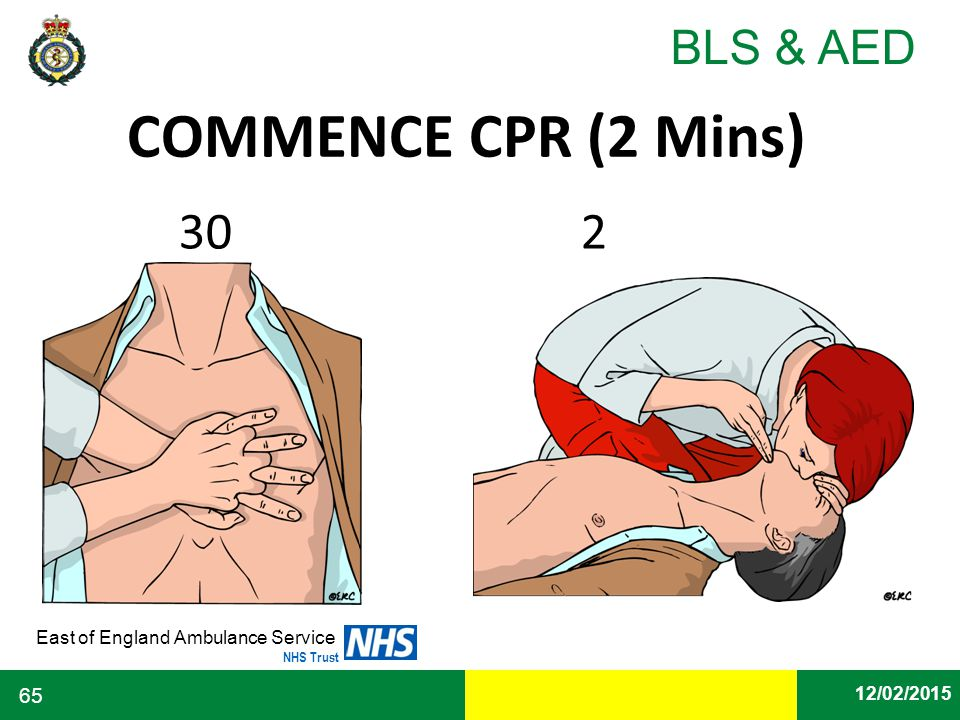 COMMENCE CPR (2 Mins) 30 2 30 2