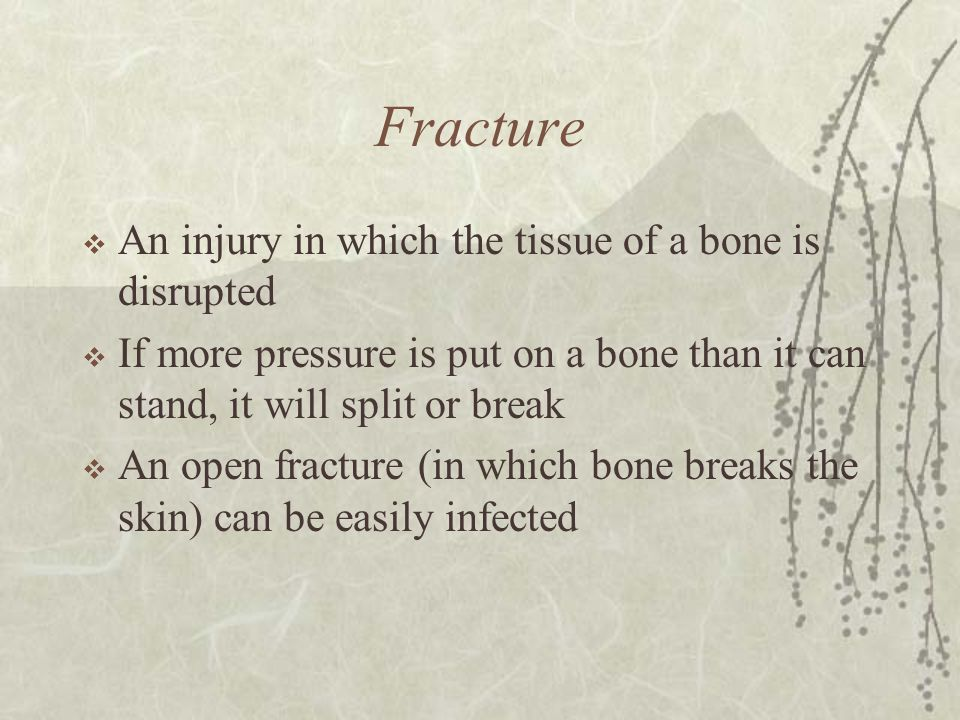Fracture An injury in which the tissue of a bone is disrupted