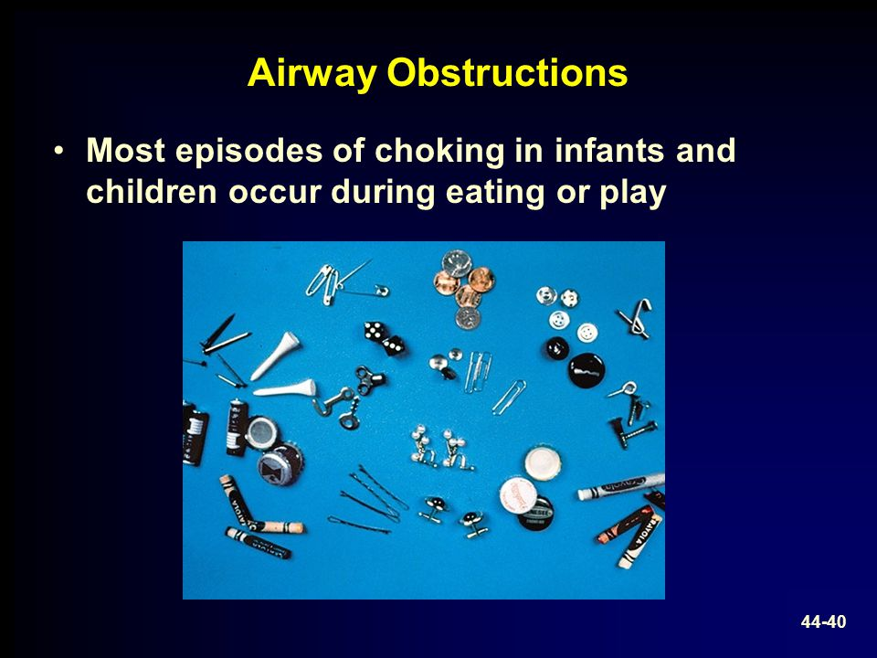 Airway Obstructions Most episodes of choking in infants and children occur during eating or play.