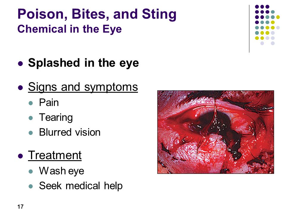 Poison, Bites, and Sting Chemical in the Eye