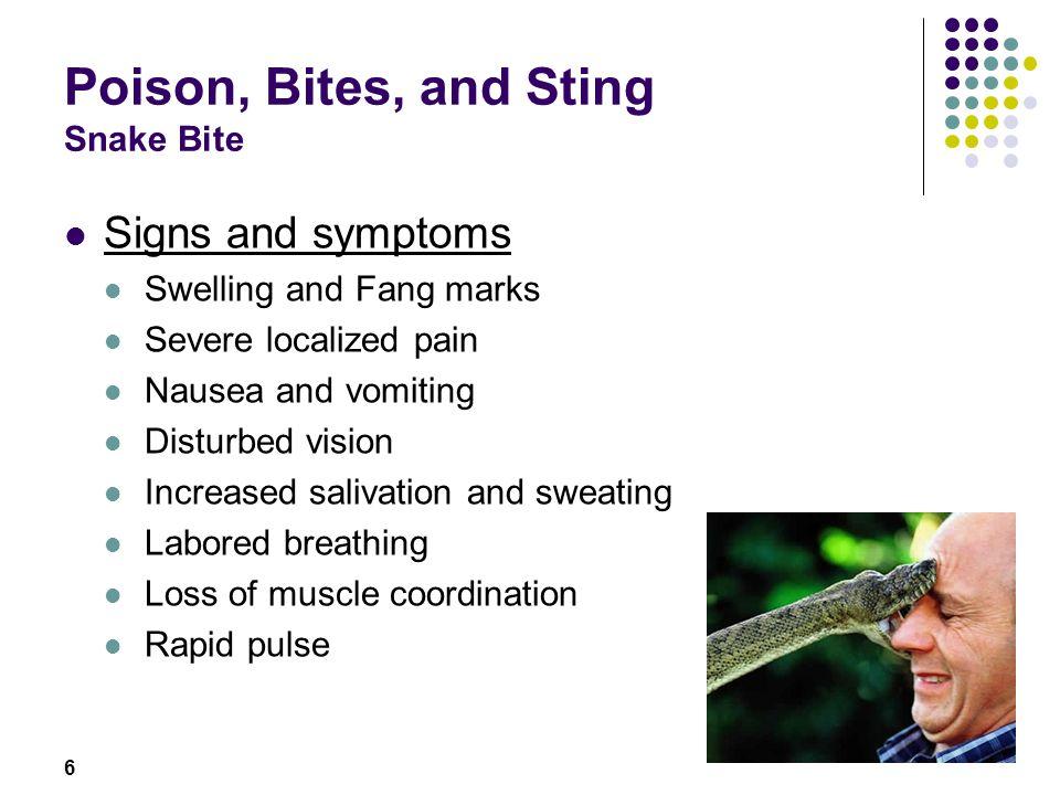 Poison, Bites, and Sting Snake Bite
