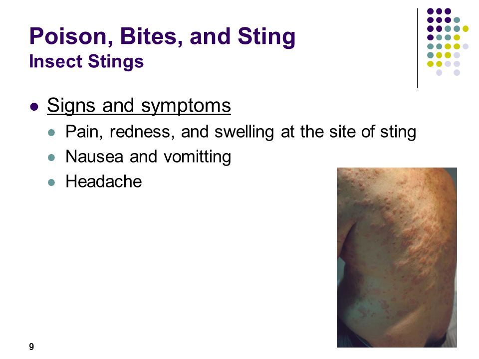 Poison, Bites, and Sting Insect Stings