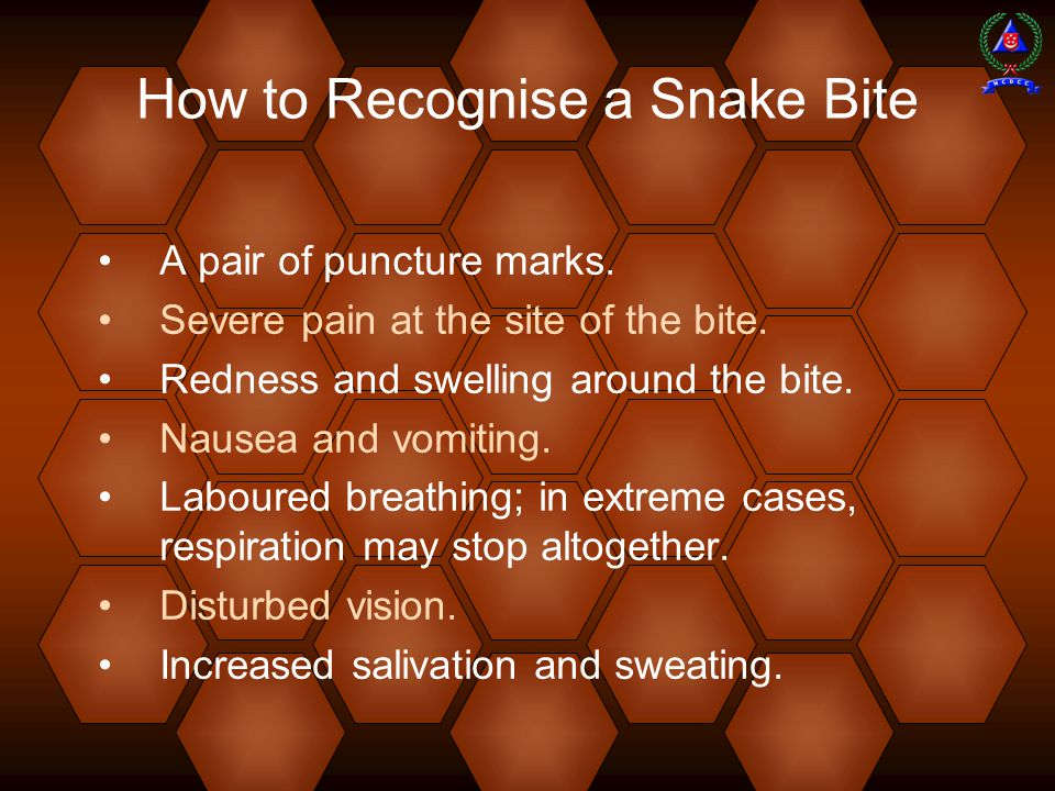 How to Recognise a Snake Bite