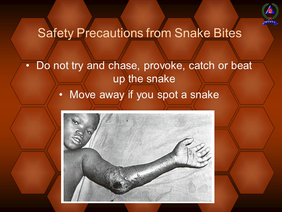 Safety Precautions from Snake Bites