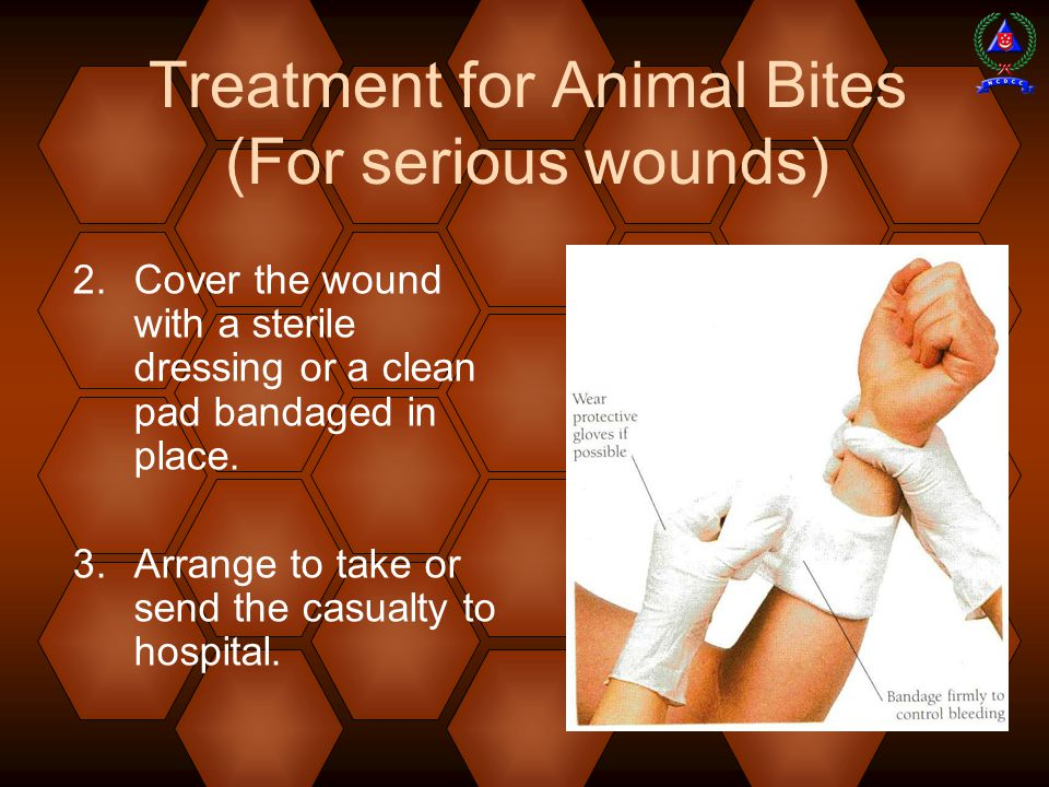Treatment for Animal Bites (For serious wounds)
