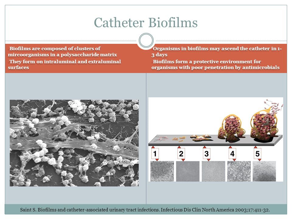 Catheter Biofilms Biofilms are composed of clusters of mircoorganisms in a polysaccharide matrix.
