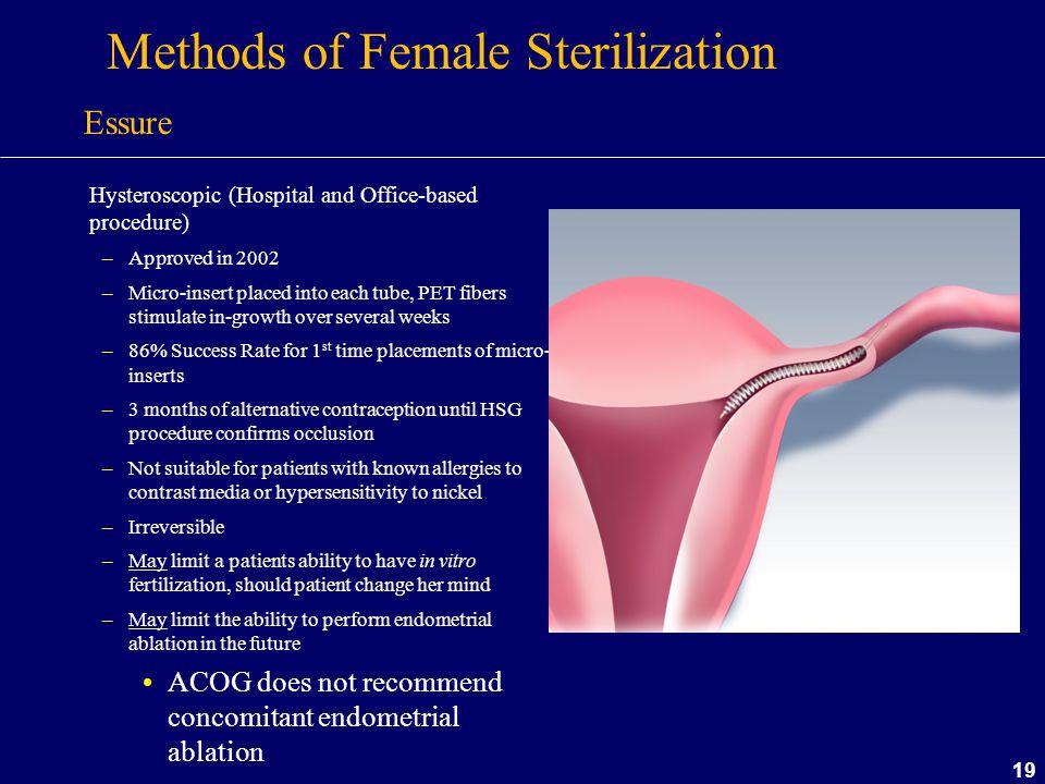 Methods of Female Sterilization