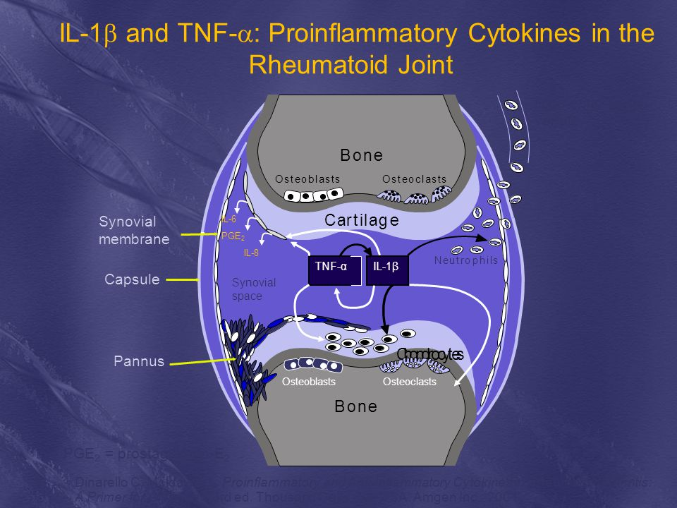 IL-1b and TNF-a: Proinflammatory Cytokines in the Rheumatoid Joint