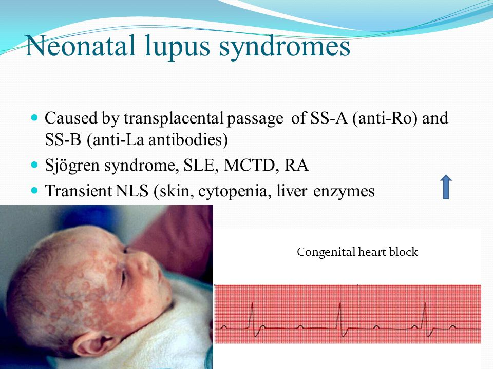Neonatal lupus syndromes