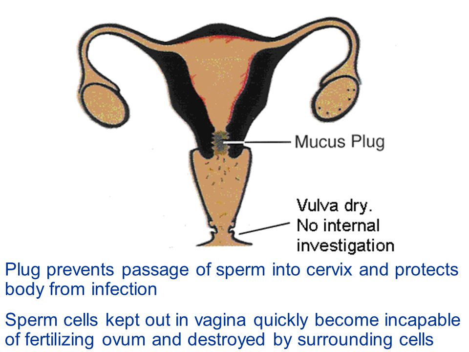 Plug prevents passage of sperm into cervix and protects body from infection