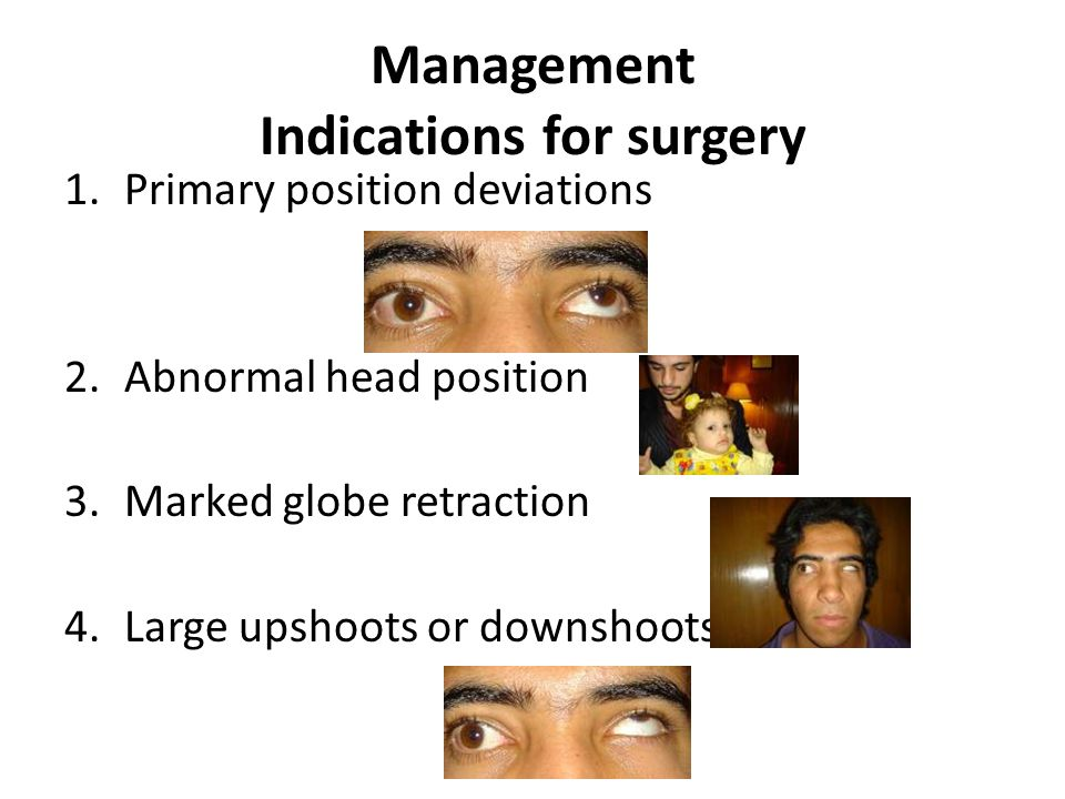 Management Indications for surgery