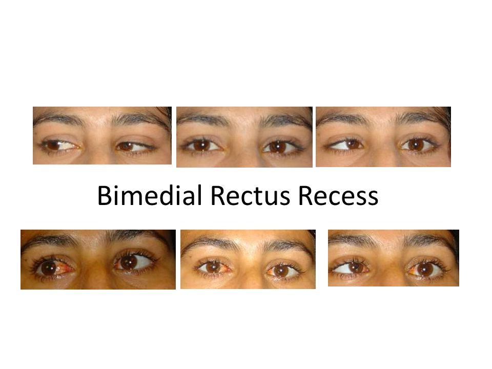 Bimedial Rectus Recess