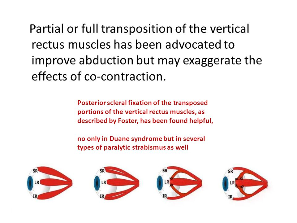 Partial or full transposition of the vertical rectus muscles has been advocated to improve abduction but may exaggerate the effects of co-contraction.