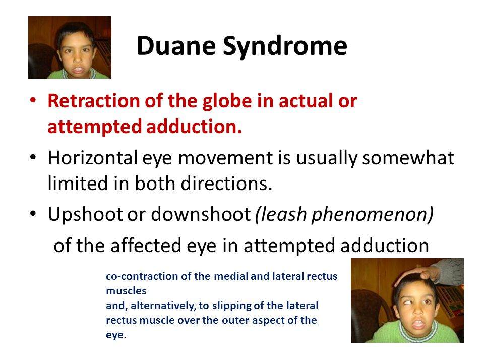 Duane Syndrome Retraction of the globe in actual or attempted adduction. Horizontal eye movement is usually somewhat limited in both directions.