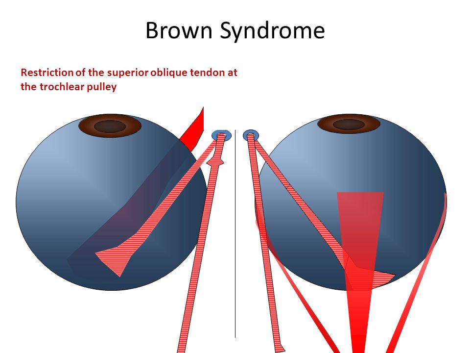 Brown Syndrome Restriction of the superior oblique tendon at the trochlear pulley
