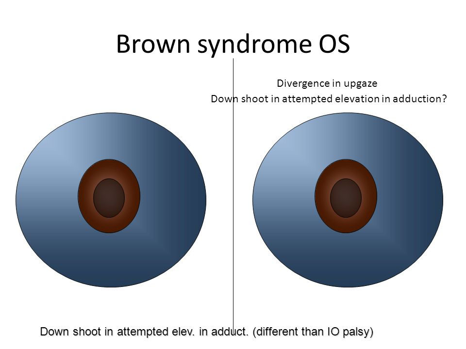 Brown syndrome OS Divergence in upgaze